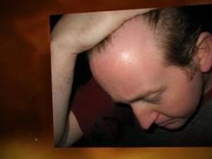 HAIR LINE RECEDING 1