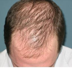 HAIR THINNING 1