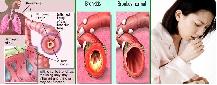 bronchitis-NEW 1